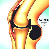 ベーカー嚢腫膝裏の腫れ